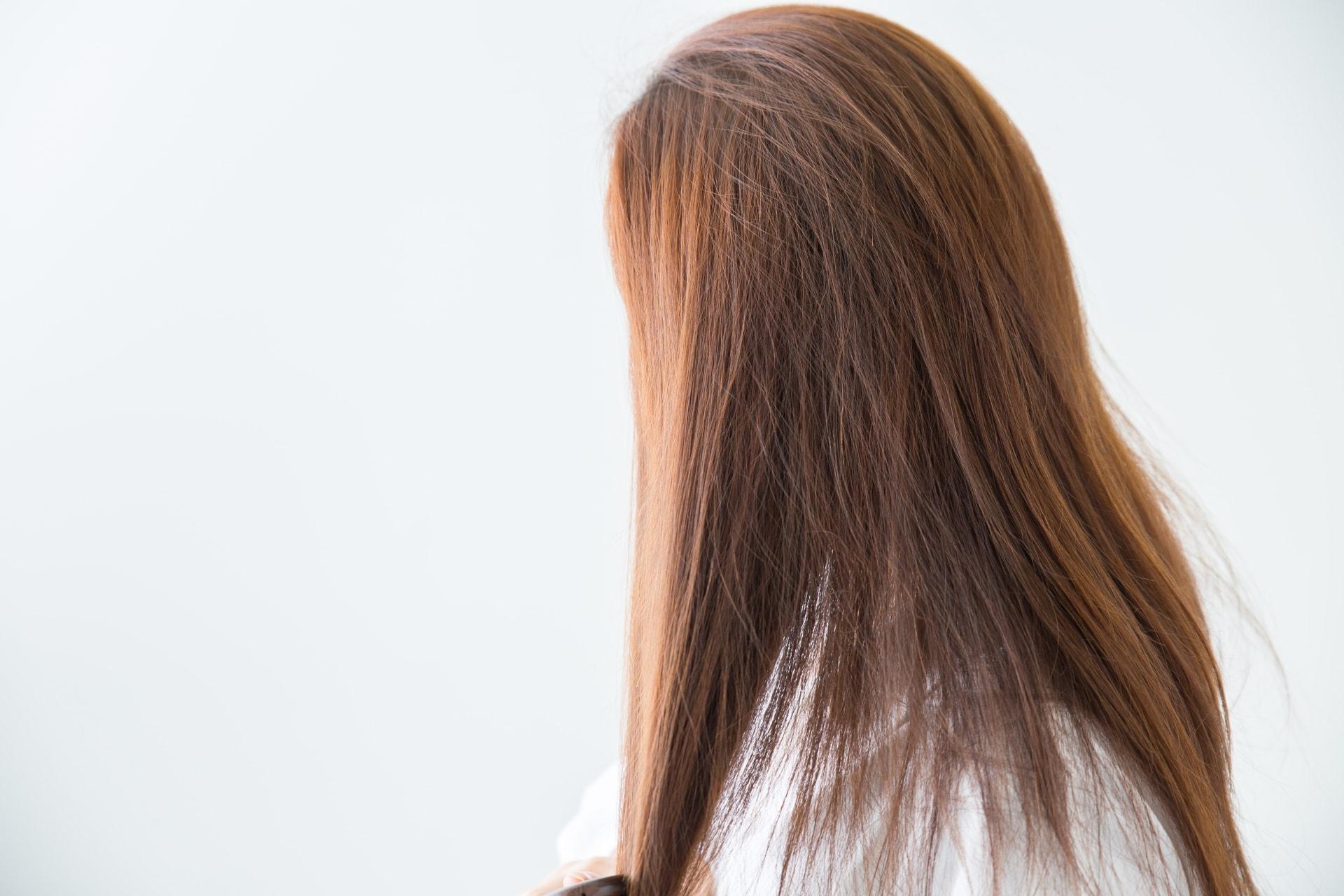 【女性の薄毛】女性の薄毛は皮膚科に行った方が良いの?